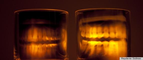 Skeleton xray teeth candles